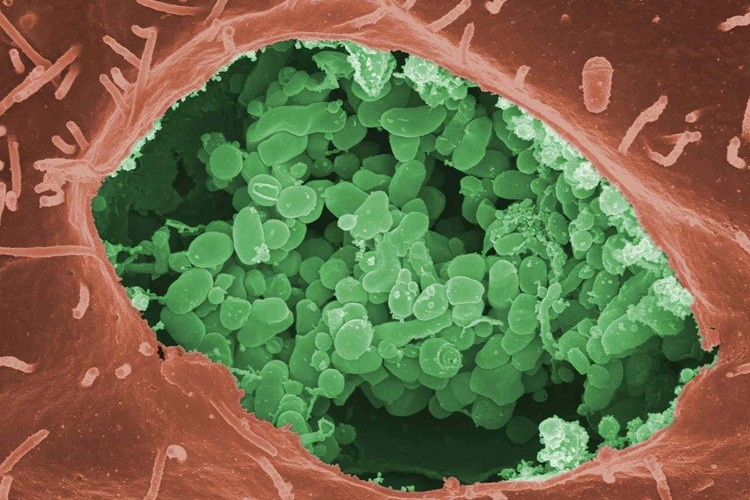 Colorized electron micrograph of a cell invaded by Coxiella Burnetii bacteria (green spheres, the agent that causes the disease known as Q fever, co-discovered at Rocky Mountain Laboratories in the 1930s).